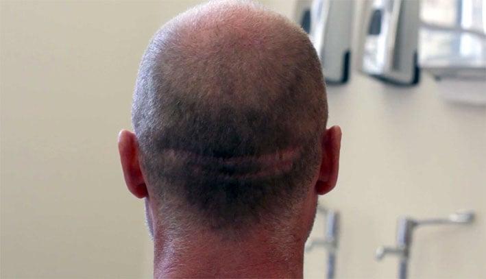 Hair Transplant Scar Example